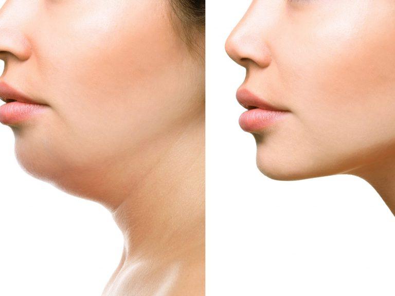Double Chin Treatment in Simsbury, CT -Samara MedSpa CT
