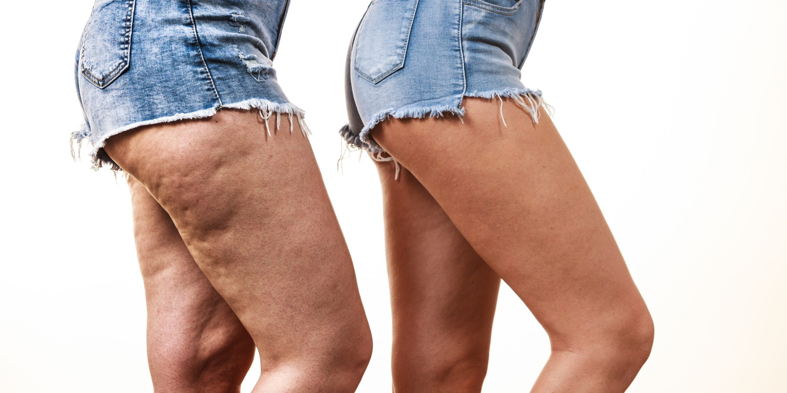 Trusculpt™ Reduces Cellulite and Sculpts Your Body Better Than Coolsculpting