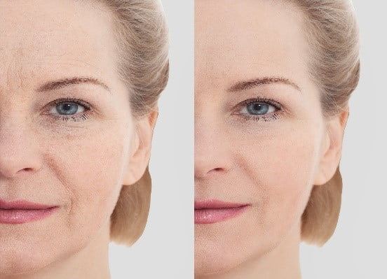 What Are the Best Treatments for Eye Wrinkles | Simsbury CT