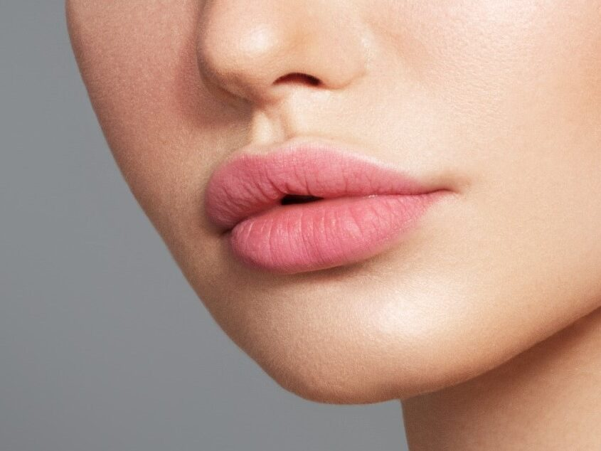 What Causes Scarred Lips And How To Get Rid Of It