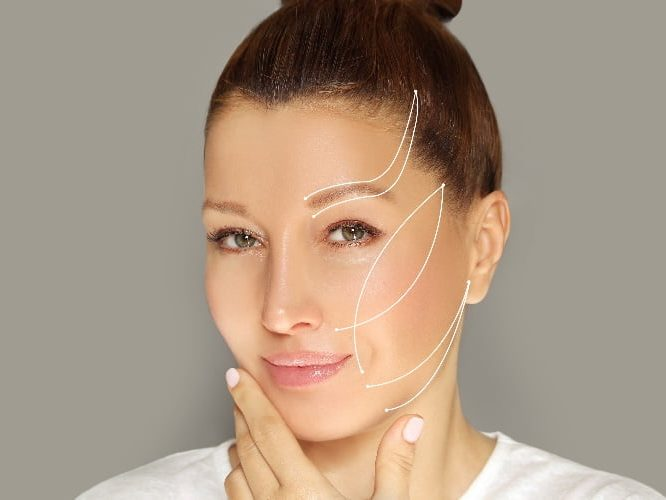 Minimally Invasive Nonsurgical Thread MINT PDO enhance your look