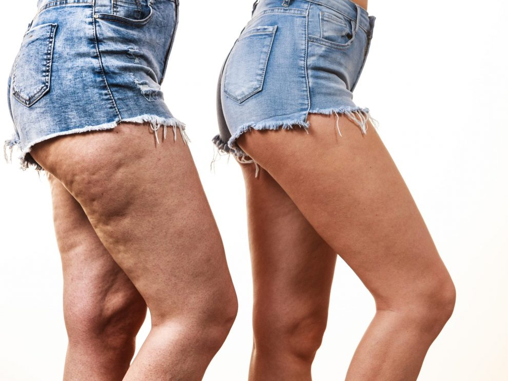 What is Venus Legacy? How Does it Help with Fat Reduction?