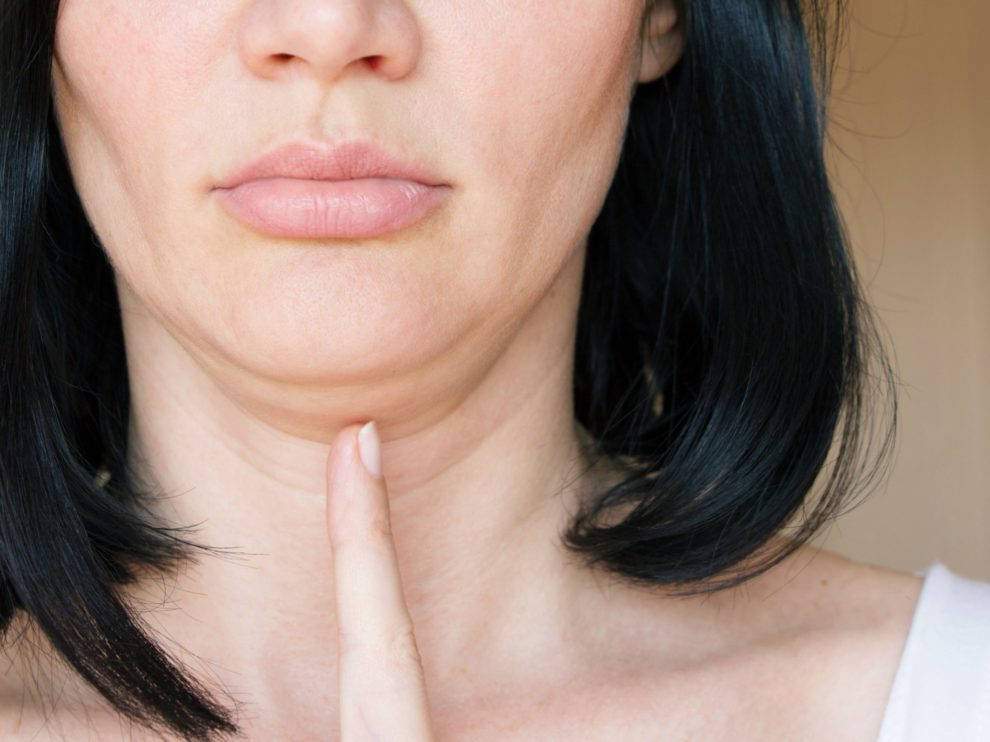 Kybella — Diminish The Double Chin With A Treatment Tailored To You