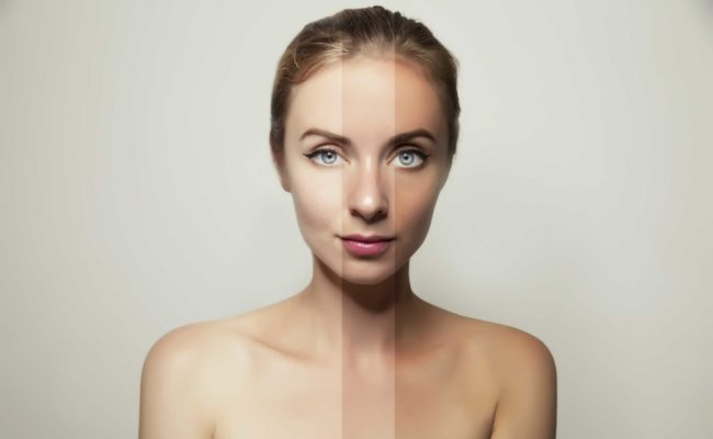Laser Genesis: a Miracle for Skin Tone, Anti-Aging and Acne Scars